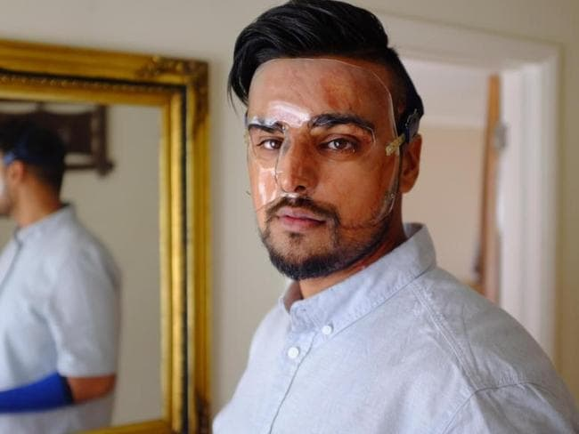 Samir Hussain told Vice he'll never get closure after being attacked with acid. Picture: Vice