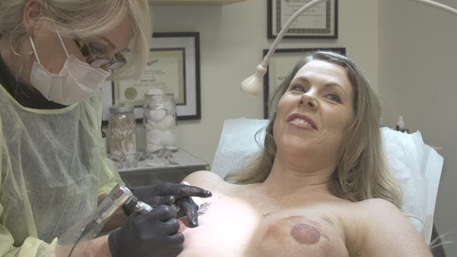 Unplanned america nipple tattoos and new ink at shamrock for Tattooed nipples after breast reconstruction