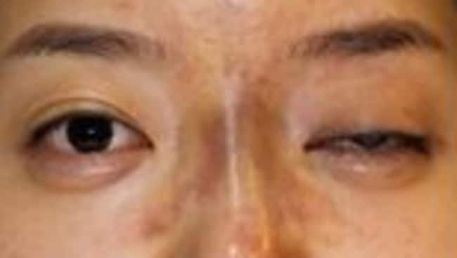 A South Korean woman who went blind in one eye after getting dermal filler injected.