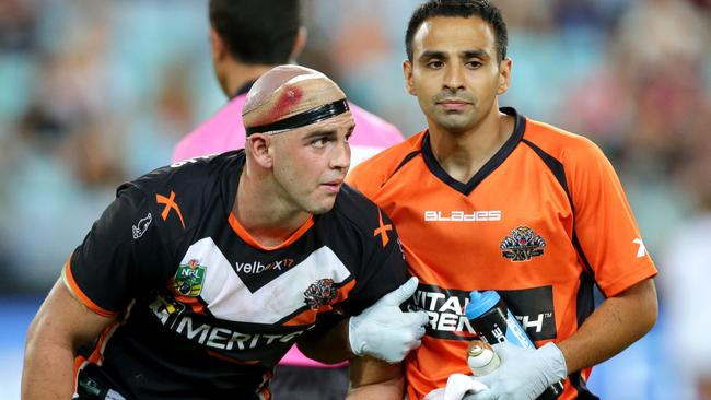 Tiger Liam Fulton has received a number of head knocks this season.
