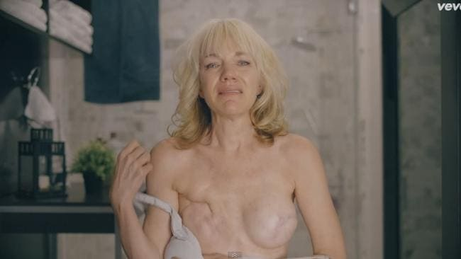 A breast cancer survivor is shown in Legend's video, revealing the scars from her mastectomy.