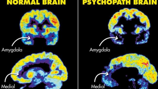 A brain on the brink: Positron emission tomography (PET) brain scans reveal physical differences between psychopaths and the general population. These scans show decreased activity in the psychopath's amygdala and medial prefrontal cortex, which are areas of the brain associated with fear, empathy and other personality markers. Brain scans courtesy of Dr. James Fallon