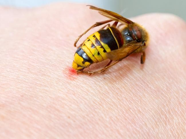 People can develop late allergies to bee strings.