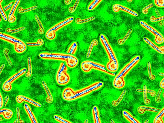 Ebola is highly contagious and almost certainly deadly.