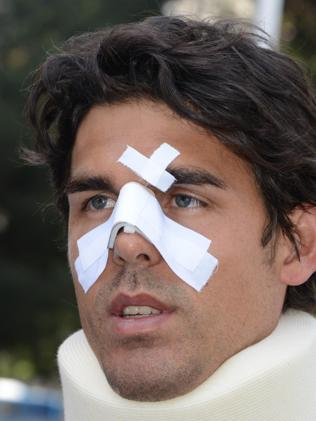 Tennis player Thomas Drouet of Monaco, leaves a court house bandaged. Picture: AFP