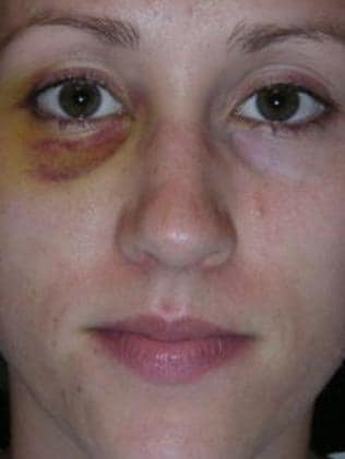 This photo of Colbie Holderness with a black eye led to Mr Porter's firing.