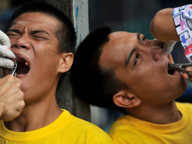 Inmates squirm as they receive dental treatment at the Quezon City jail. Picture: Noel Celis