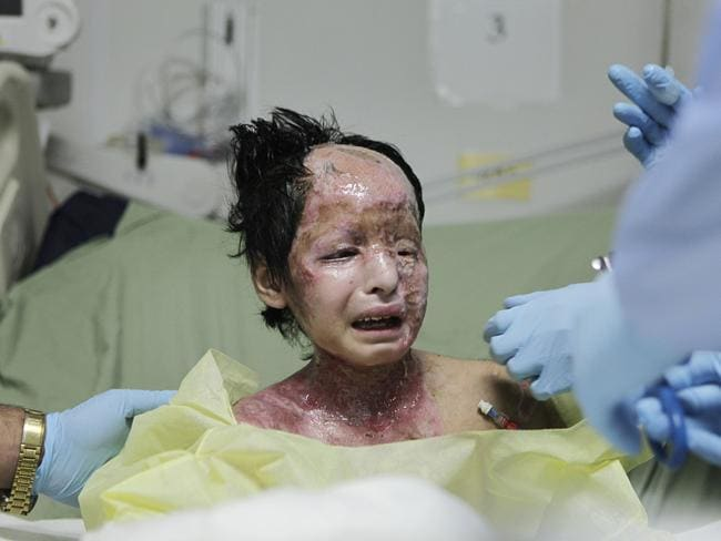 Razia, 8, was burned in 2009 by a white phosphorus bomb dropped on her home in Afghanistan. Picture: Rafiq Maqbool/AP