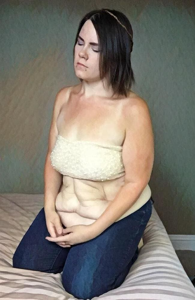 After a fundraising campaign, Amanda began to undergo skin removing procedures to get rid of the excess skin. Picture: Jam Press