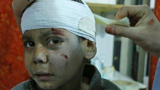 Hossam Hawari, 8, is treated from a shrapnel wound at a makeshift clinic in Kafr Batna. Picture: AFP PHOTO / Mohammed Eyad.