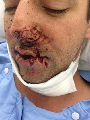 Still shocked .. Adam Haling was attacked by a shark. Picture: Courtesy Adam Haling