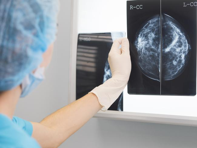 """are mammograms really necessary At the second presidential debate, president barack obama said that women """"rely on"""" planned parenthood for mammograms actually, mammograms are not performed at the clinics planned parenthood doctors and nurses conduct breast exams and refer patients to other facilities for mammograms."""
