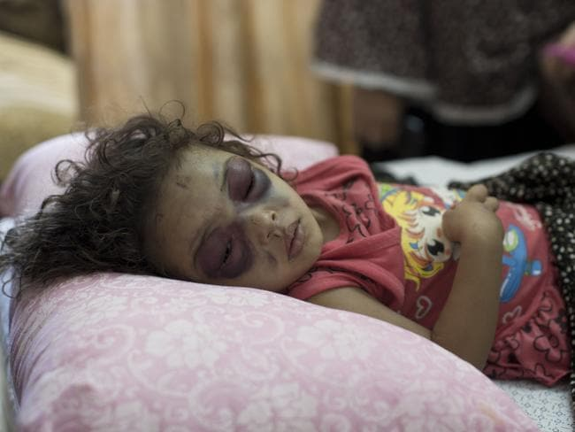 Tiny victims ... two-year-old Palestinian girl Naama Abu al-Foul sleeps after undergoing treatment at Gaza City's Al-Shifa hospital following Israeli bombing next to her family's home. Picture: Mahmud Hams