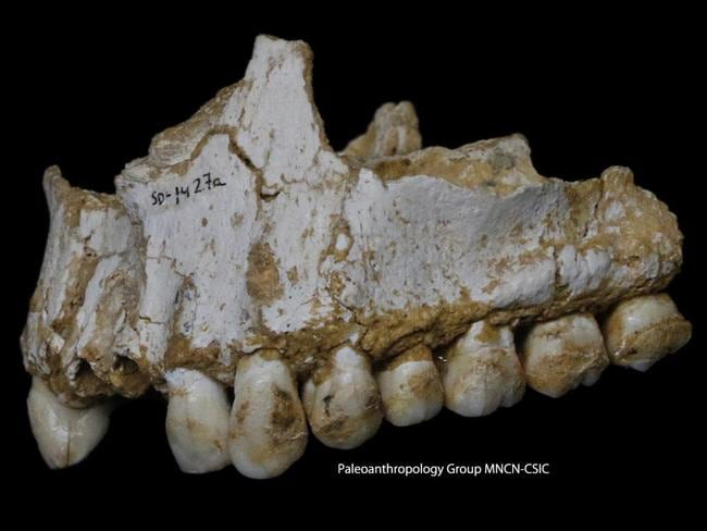 An El Sidron upper jaw: a dental calculus deposit is visible on the rear molar, right, of this Neanderthal. Picture: Paleoanthropology Group MNCN-CSIC / AP