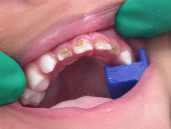 Thousands of Queensland children are being admitted to hospital each year because of tooth decay.