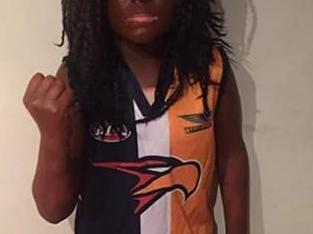 Nic Nat speaks out on blackface drama