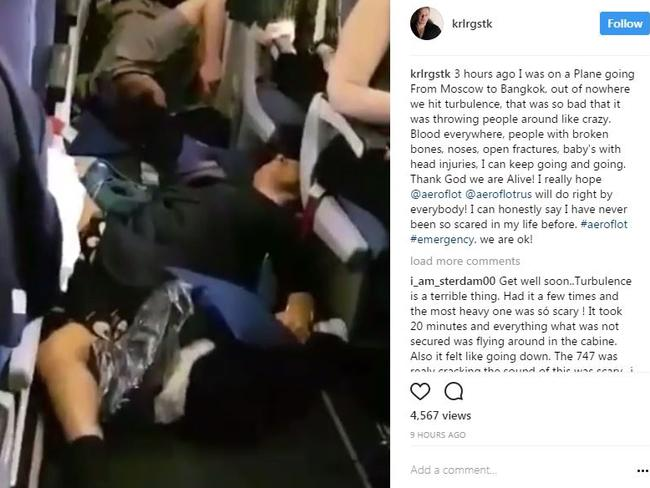 Passengers were badly injured on an Aeroflot flight that hit turbulence in May. Picture: Instagram/krlrgstk