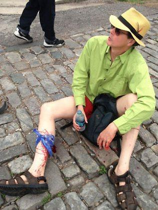 A wounded bystander at the Mother's Day parade in New Orleans. Picture:NOLA.cm/Twitter
