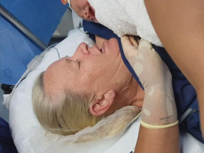 Lynn Cooper during her C-section.