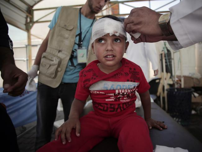 Human toll ... a Palestinian boy injured in an Israeli strike receives treatment in the Kuwaiti hospital in Rafah refugee camp, southern Gaza strip. Picture: AP