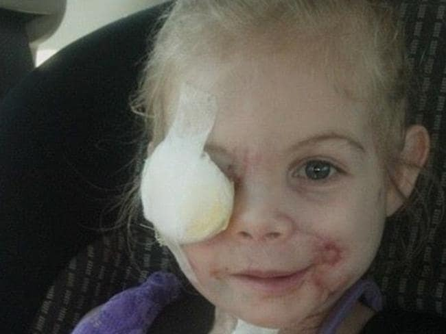 Victoria Wilcher, 3, was mauled by her grandfather's pit bulls. Source: Facebook