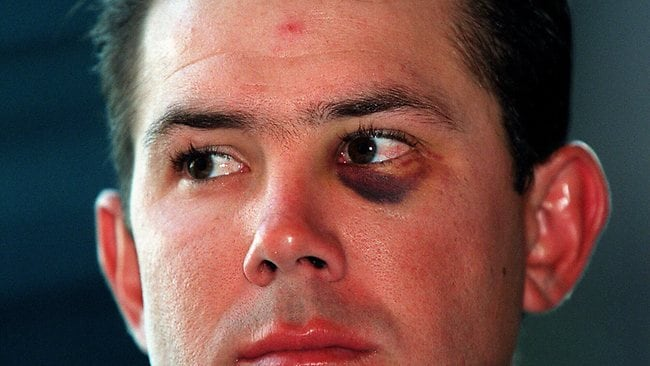 Ricky Ponting with black eye at news conference in Hobart, where ACB announced that he has been suspended from Australian team after he became involved in brawl at Kings Cross nightclub on 18/01/1999. Picture: Phil Hillyard