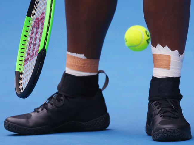 What's with Serena's shoes?
