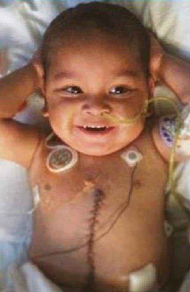 Five organ transplant ... Adonis Ortiz, aged three, who has lived his life in hospital is expected to make a full recovery. Picture: Jackson Health System