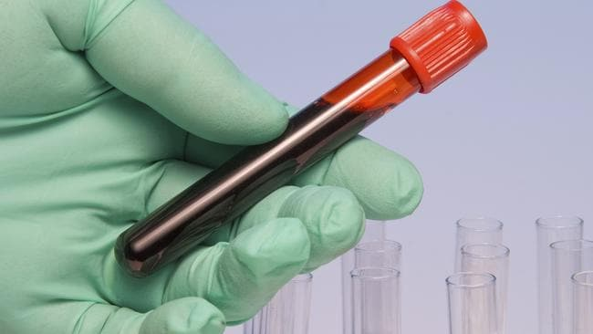 A pathologist handling a blood sample in a test tube. Picture: istock