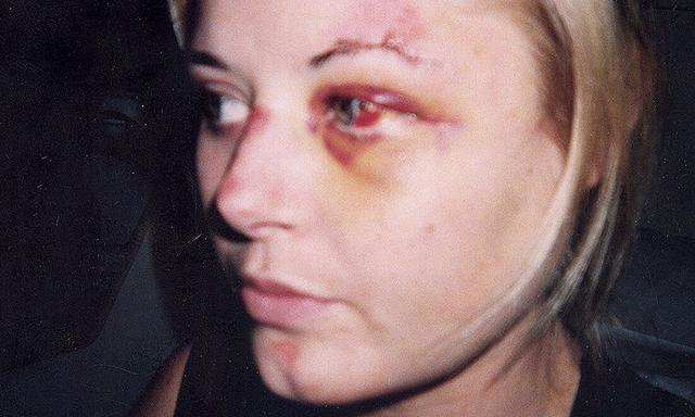 Actor Madeleine West injured after being hit by a bus in Sydney 2002.