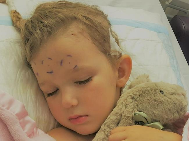 Emily has already undergone surgery to remove her tumour. Picture: Facebook