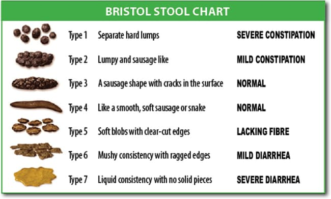 The scientists are trying to train the AI to compare samples with the Bristol stool chart. Picture: Cabot Health, Bristol Stool Chart