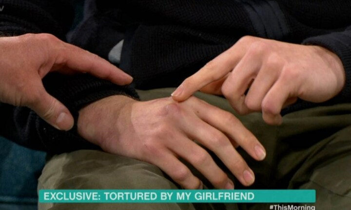 Alex hands are covered by scars from when Jordan attacked him with a knife. Source: Supplied