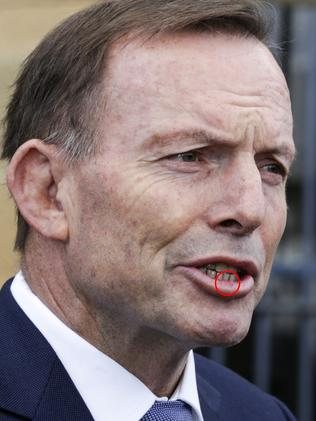 Tony Abbott sported a slightly bruised lip after the alleged headbutting last week. Picture: Jim Rice/AAP