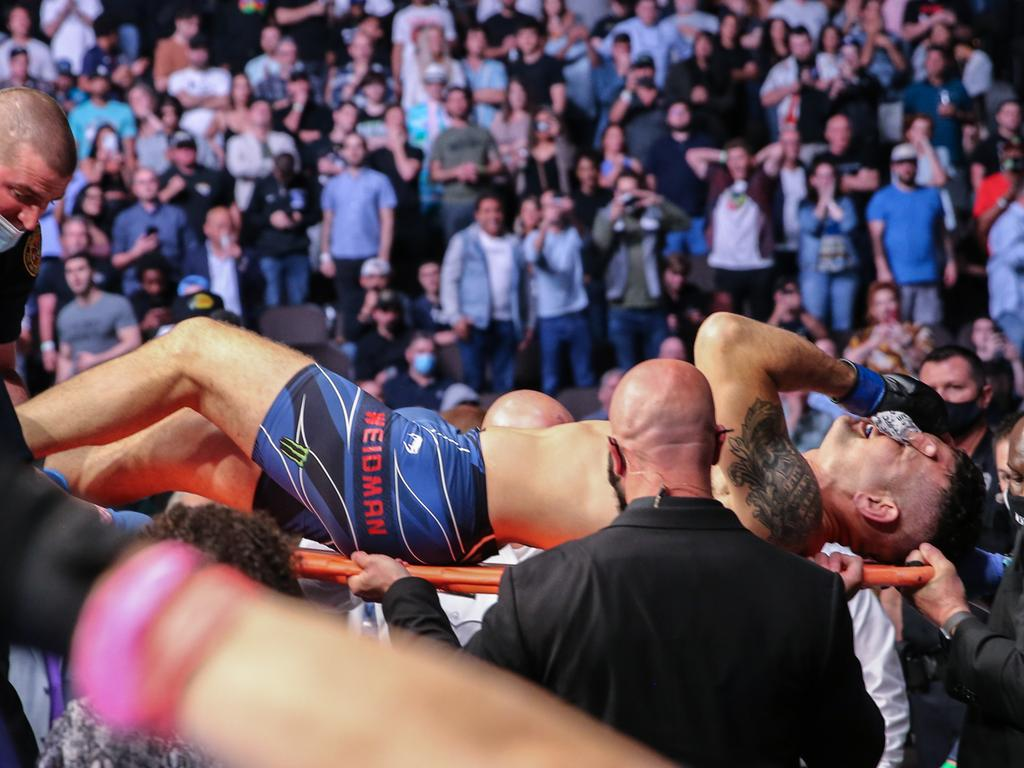 Weidman was in serious pain and had to be stretchered out of the Octagon.