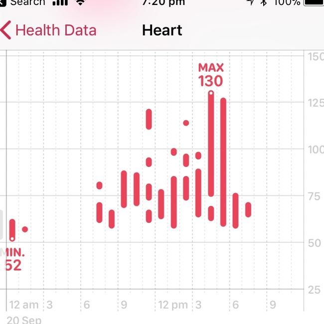 Apple Watch and other fitness trackers track heart rate as one of many data collection points.