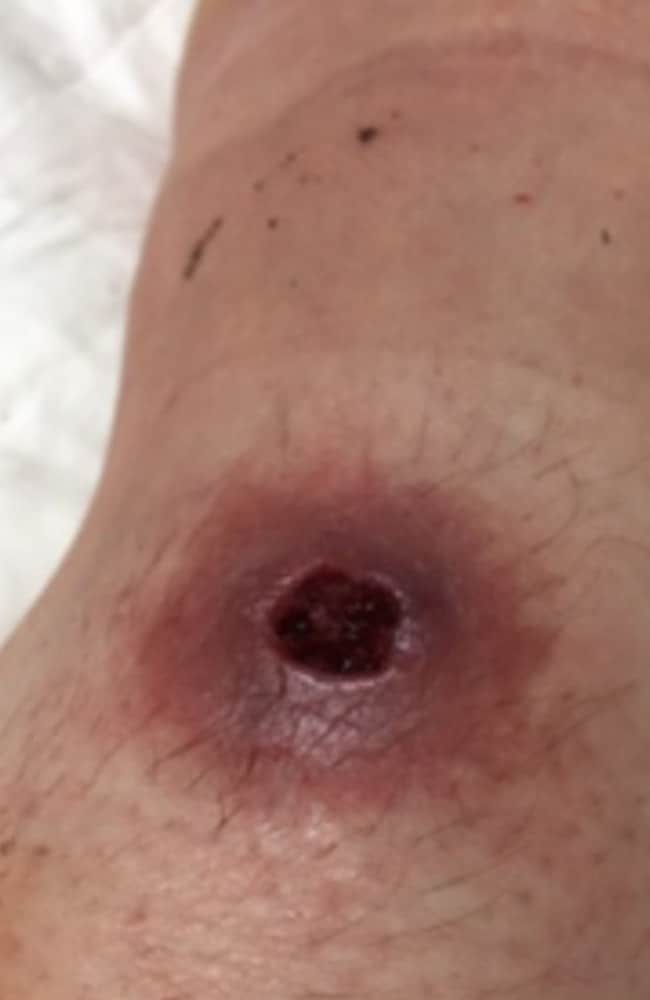 The Buruli ulcer starts as a pimple-like bump but grows to become a large sore..