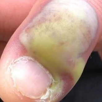 A woman shared photos of her friend's badly infected finger. Picture: Karen Peat
