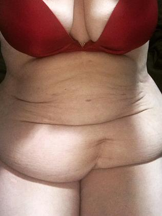 Amanda Nauffts tummy in December before having her excess skin removed.