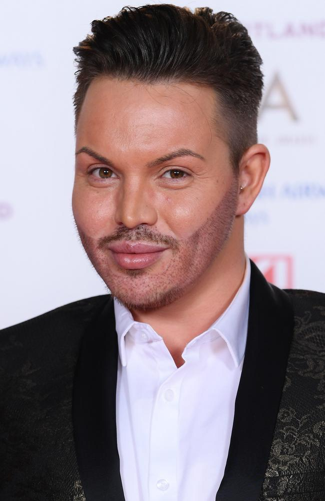 Bobby Norris and beard. Picture: David Fisher/REX/Shutterstock