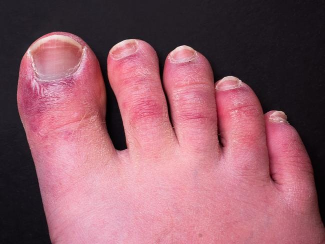 It has been documented that a foot rash is a common side effect of having the virus. The media refers to this as 'Covid Toe'. Picture: Getty