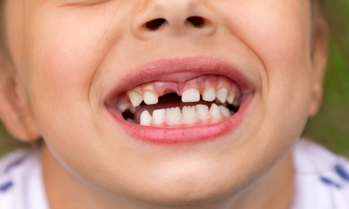 The weird (and kinda gross) trick to use if your child loses an adult tooth