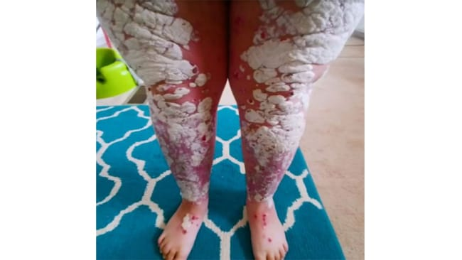Sabrina was diagnosed with psoriasis when she was just 12 years old. Image: Barcroft TV