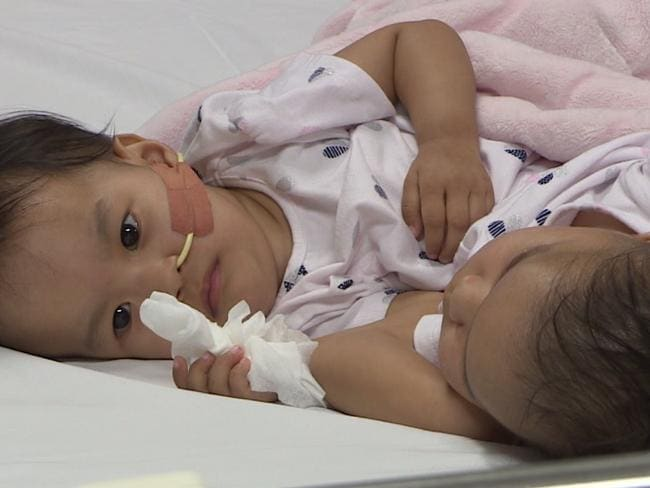 Brave twins Nima and Dawa today before their surgery. Source: RCH Melbourne Studio.
