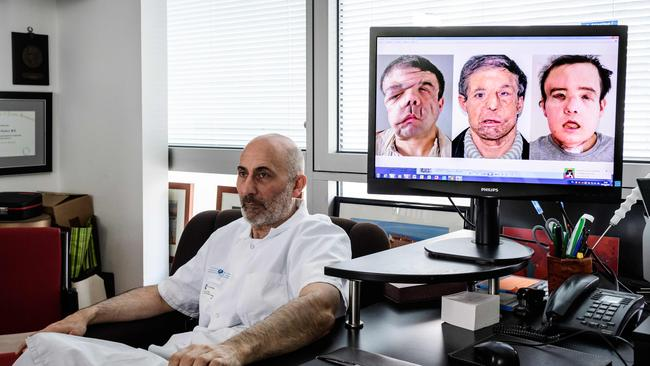 Laurent Lantieri poses next to a screen showing different steps of his patient Jerome Hamon's surgery.