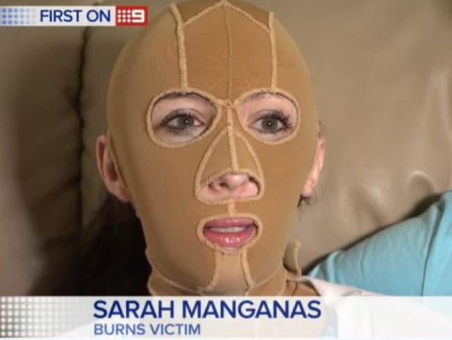 Sarah Manganas wants to ensure other burns victims don't have to suffer humiliation while out shopping. Picture: Nine News