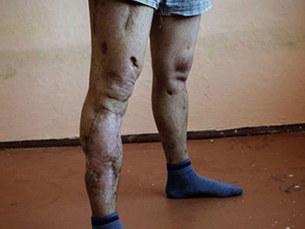 Krokodil drug reaches Australia: Side-effects of deadly zombie drug
