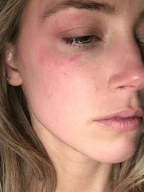 Amber Heard bruised after alleged abuse by Johnny Depp