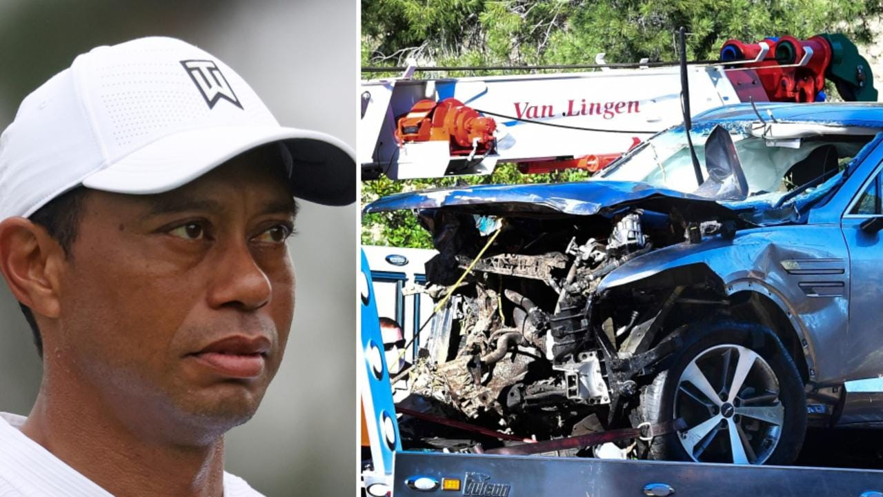Tiger Woods suffered multiple leg injuries in a horror car crash.
