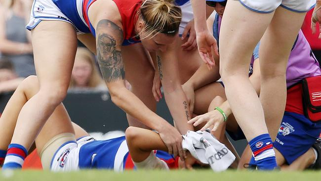 Bulldog Libby Birch went off the ground with the blood rule but later returned to the field and played out the game. Picture: Michael Klein